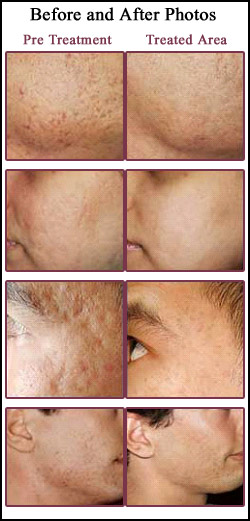 Acne Scar Removal Treatment Delhi