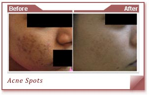 Acne Specialists In India
