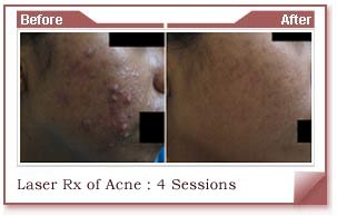 acne skin removal treatment