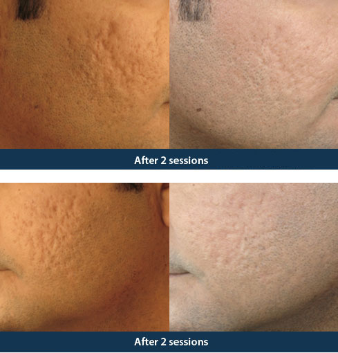 Acne Treatment Delhi