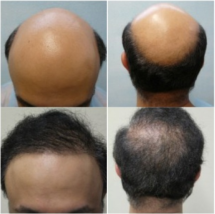 Would have been a poor FUE hair transplant candidate without BHT.