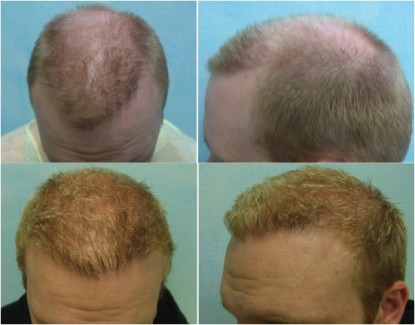 FUE hair transplant on a younger patient.