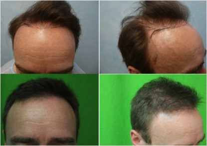 FUE hair transplant patient before and after a successful surgery.